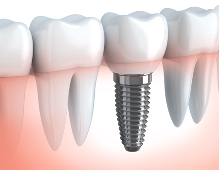 ¿Qué son los implantes dentales?